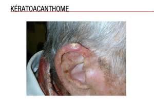 les cancers cutan 233 s non m 233 lanomateux medscape