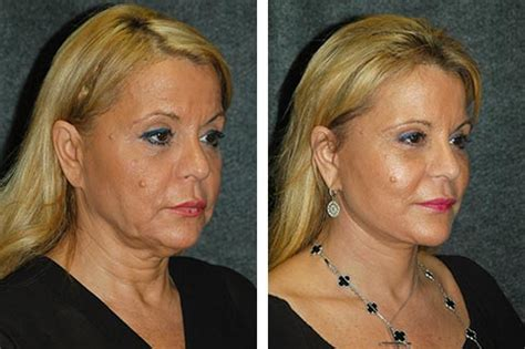 Is A Mini Lift A Facelift Alternative by Things You Should About Facelift Nyc Health 2 0