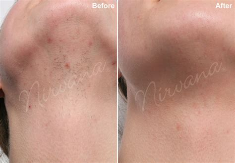 hair removal before after photos laser hair removal nirvana laser hair and skin