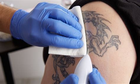 sugarland tattoo removal revitalife health spa up to 62 sugar land tx