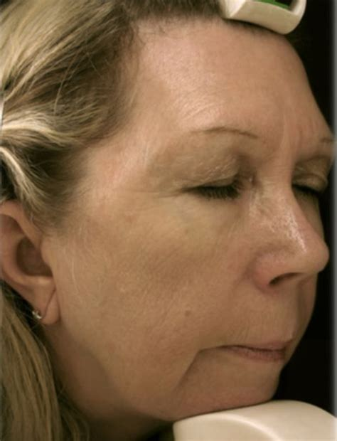 hairstyles for sagging jowls now you can have an instant facelift in just an hour