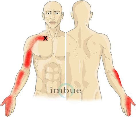 clavicle pain bench press collarbone pain bing images