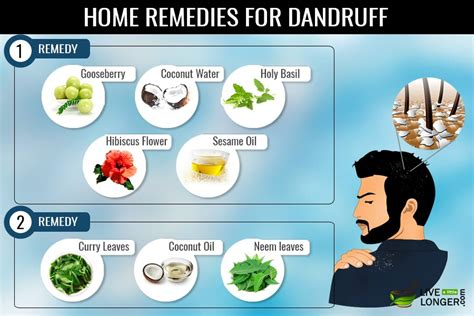 7 herbal home remedies for dandruff that work