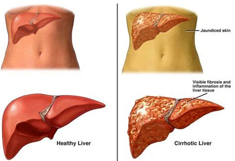 Can Liver Damage Cause Blood In Stool by Liver Disease Cell Therapy Intellihealthplus