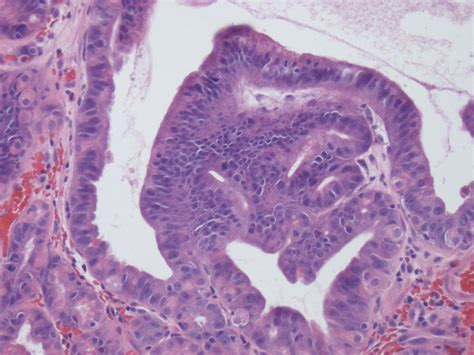 Gastric Adenoma Pathology Outlines by Pathology Outlines Fundic Gland Polyp