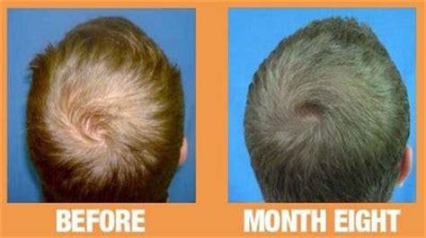male pattern hair loss reversal reversing male pattern baldness greco hair restoration