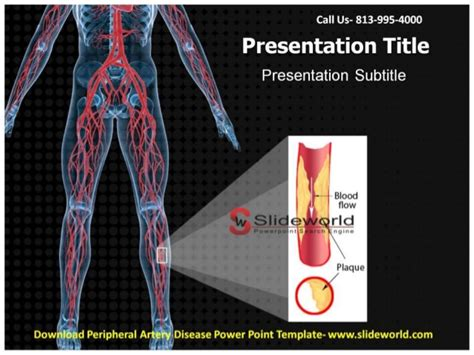 Peripheral Artery Disease Powerpoint Template Disease Powerpoint Template