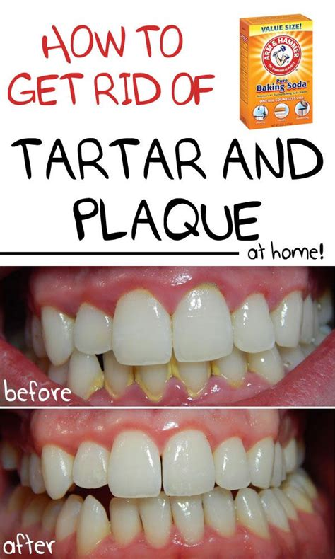 25 best ideas about how to remove plaque on