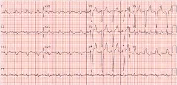 Here the qrs duration was 160 ms so the previous one is widened by