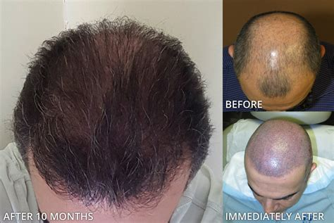 haircut after hairtramsplant haircut after hair transplant fue haircuts models ideas