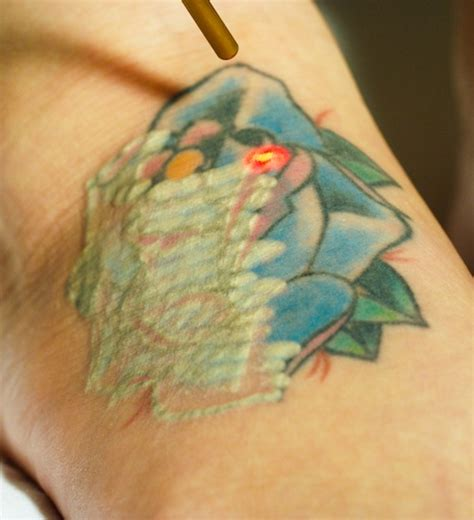 advances in tattoo removal the cosmetic and skin surgery center advances their