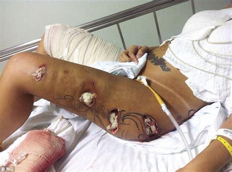 sedere brasiliano il corpo della miss bum bum martoriato dall intervento