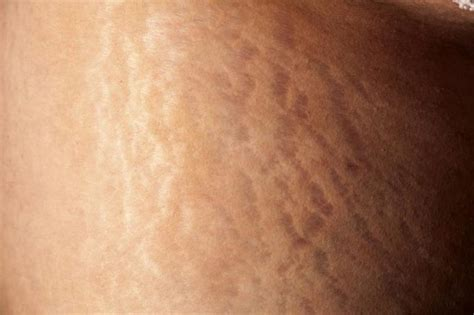 Stretch Marks by 6 Safe Ways To Get Rid Of Stretch Marks Fast And Naturally