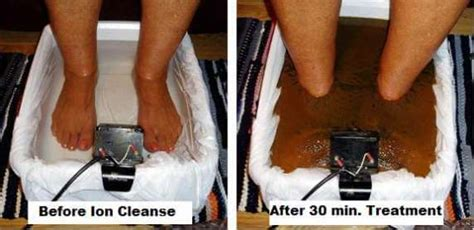 Toxin Foot Bath Detox by Ionic Detox Foot Bath Therapy Clinic On The Shore Of