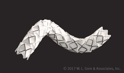 Origami Stent - fda approves balloon expandable stent graft for use