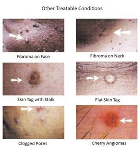 mole skin tag wart removal river city cosmetics