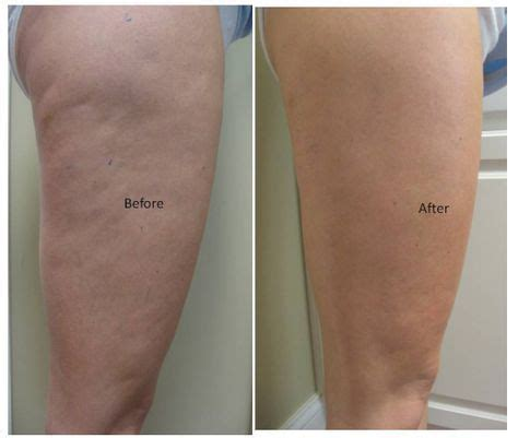 This Cellulite Works by 25 Best Ideas About Thigh Wrap On Do