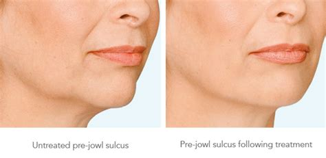 sagging jowls treatments for sagging jowls jowl reduction the best exercises to get rid of double chin glamroz