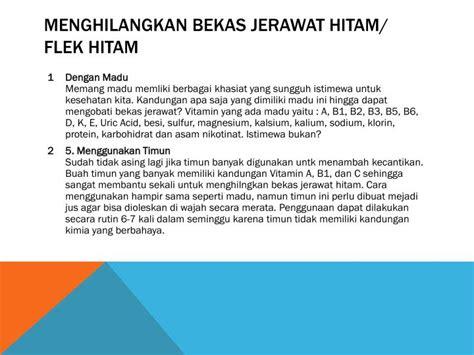 Azelaic Acid Hitam Bekas Jerawat ppt cara menghilangkan bekas jerawat powerpoint presentation id 7396341
