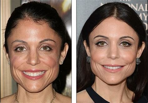 bethenny frankel plastic surgery before and after bethenny frankel plastic surgery celebrity plastic surgery