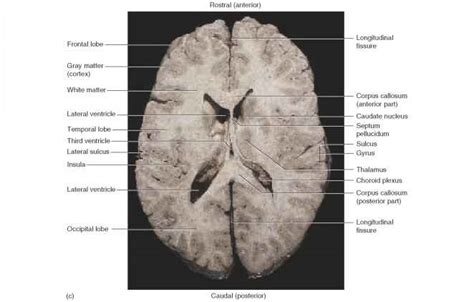 meninges ventricles cerebrospinal fluid and blood supply