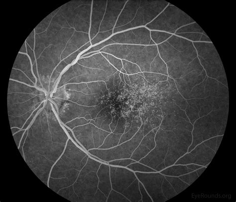 prph2 pattern dystrophy early onset macular drusen and c3 glomerulopathy formerly