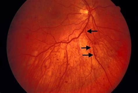 venous beading proliferative diabetic retinopathy venous beading