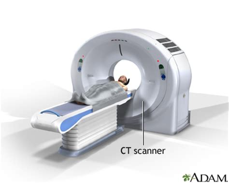 c t ct scan medlineplus medical encyclopedia image