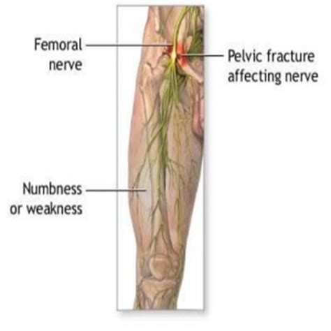 nerve pain causes nerve pain thighs natural cure for nerve damage health info etc