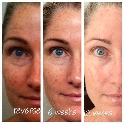 Radiant Renewing My Noor Pack 26 best r f images on rodan and fields
