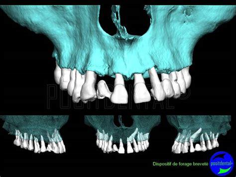 vire fangs vire teeth vire teeth baby vire teeth eugenol canine