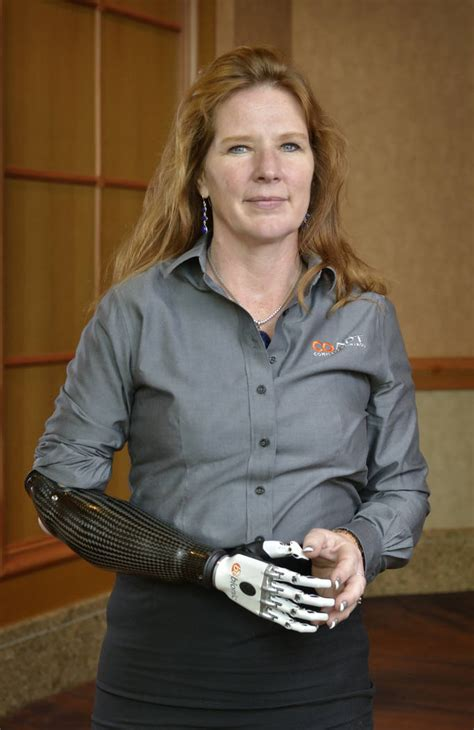 boating accident girl loses arm company provides advanced technology for artificial limbs