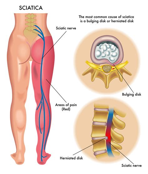 how to treat sciatica pain in leg effective ways to ease sciatic pain central orthopedic group