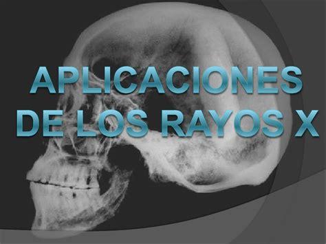 rayos x rayos x