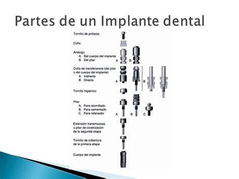 partes de un sillon dental rehabilitaci 243 n unitaria sobre implantes oseointegrados