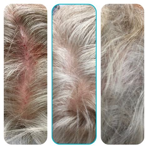 light therapy for hair loss hair loss treatment program regrowth red light prfm