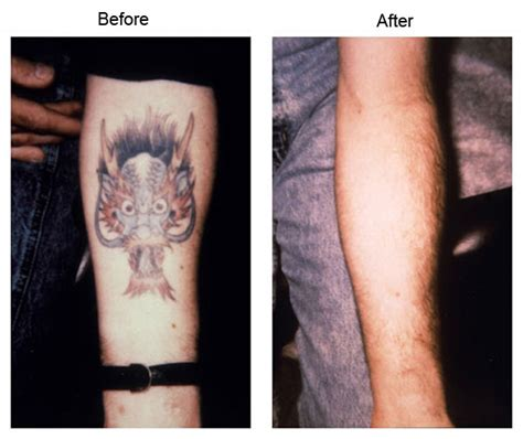 fast tattoo removal laser removal la fast effective treatment los