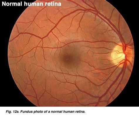 fundus exam findings normal retina radiology pinterest ojos