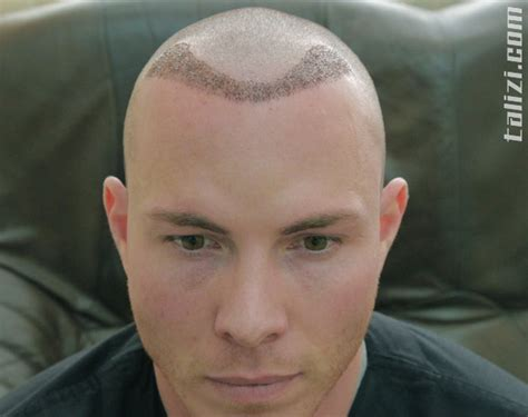 haircut after hairtramsplant period after hair transplant using the fue method