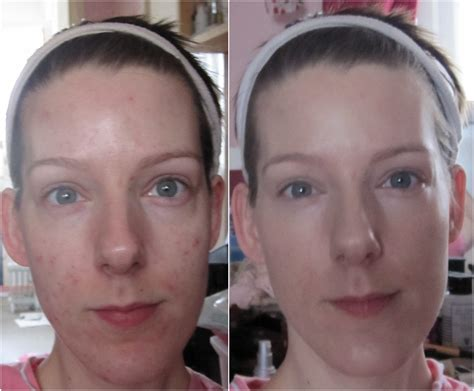 Acne Serum Zahra Skincare Pink new skin before and after uk