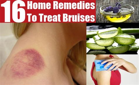 remedies to treat bruises