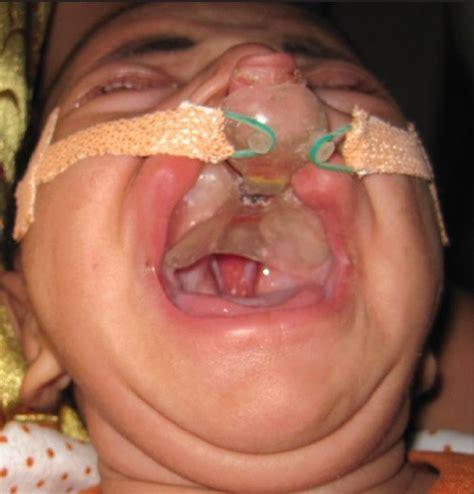 nasoalveolar molding treatment in presurgical infant