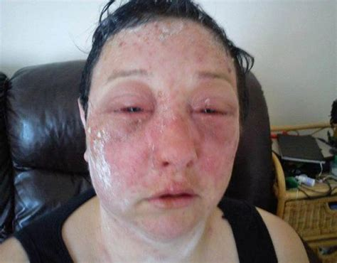 hair dye for sensitive skin and allergies horror hair dye allergic reaction leaves woman s life in