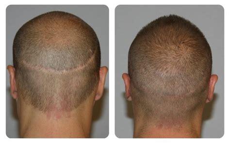 fue vs strip strip versus fue hair transplant newhairstylesformen2014 com