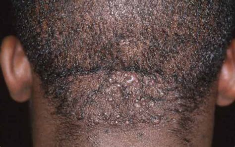 black dots of ingrown hairs on back of thighs ingrown hair on neckline back of neck female how to get