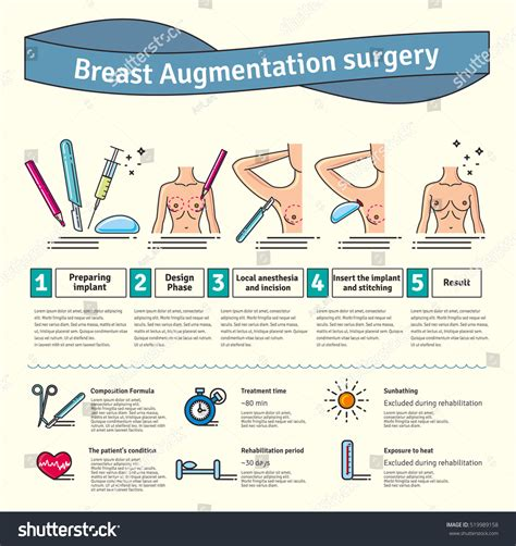 surgery information understanding surgery surgery a to z what causes breast cancer