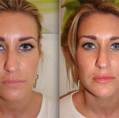how soon can you wear makeup after dermaroller mugeek