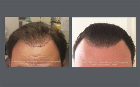 hair restoration hair transplant neograft orlando neograft hair transplant results with automated fue hair