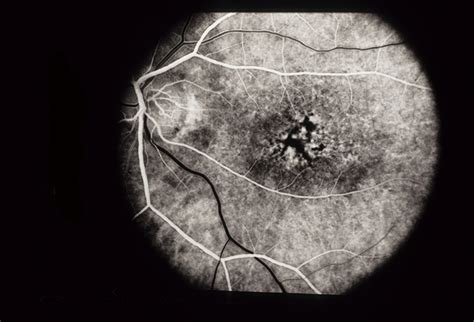 early pattern dystrophy pattern dystrophy retina image bank