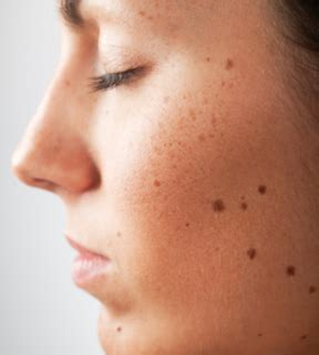 Black Dots Comeing Out Of Skin In Detox Bath by Brown Spots On Skin Causes Raised Patches